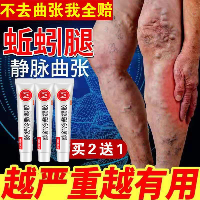 脉舒冷敷凝胶静脉曲张膏腿部肿胀精索血管凸起医用正品非药膏外用