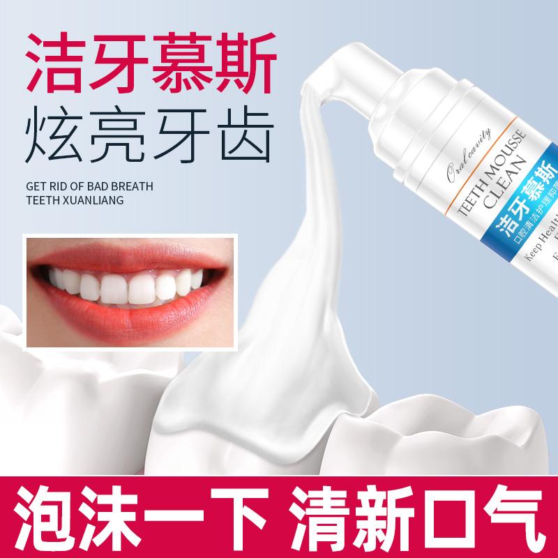 洁牙慕斯慕丝泡沫牙膏去黄除口臭气牙垢牙结石亮美白牙齿薄荷正品