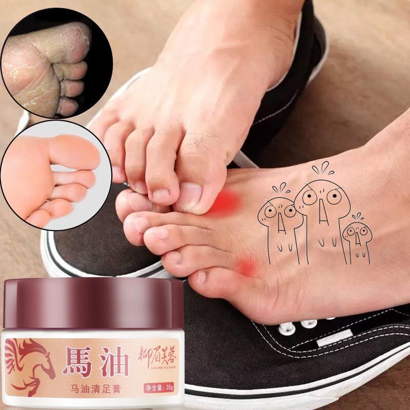 柳眉芙蓉清足膏北海道马油正品去死皮老茧嫩脚后跟止痒防干裂足部