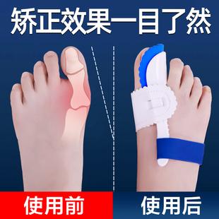 大脚骨拇指外翻矫正器拐骨大母脚趾内翻矫形纠正带可以穿鞋男女士