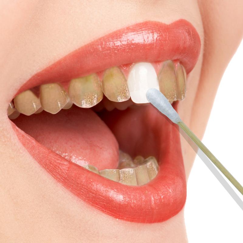 牙齿美白速效去除黄牙烟渍牙垢氟斑牙洗牙液洗牙粉小苏打牙贴神器