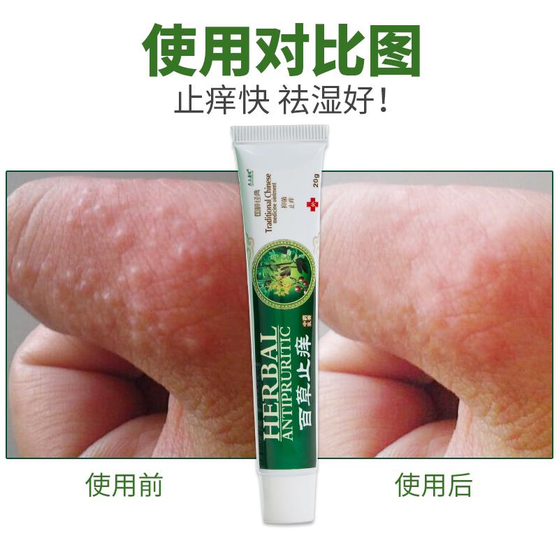 百草止痒膏大腿内侧脚气阴囊皮肤瘙痒外阴肛门股廯疹溼外用涂抹药