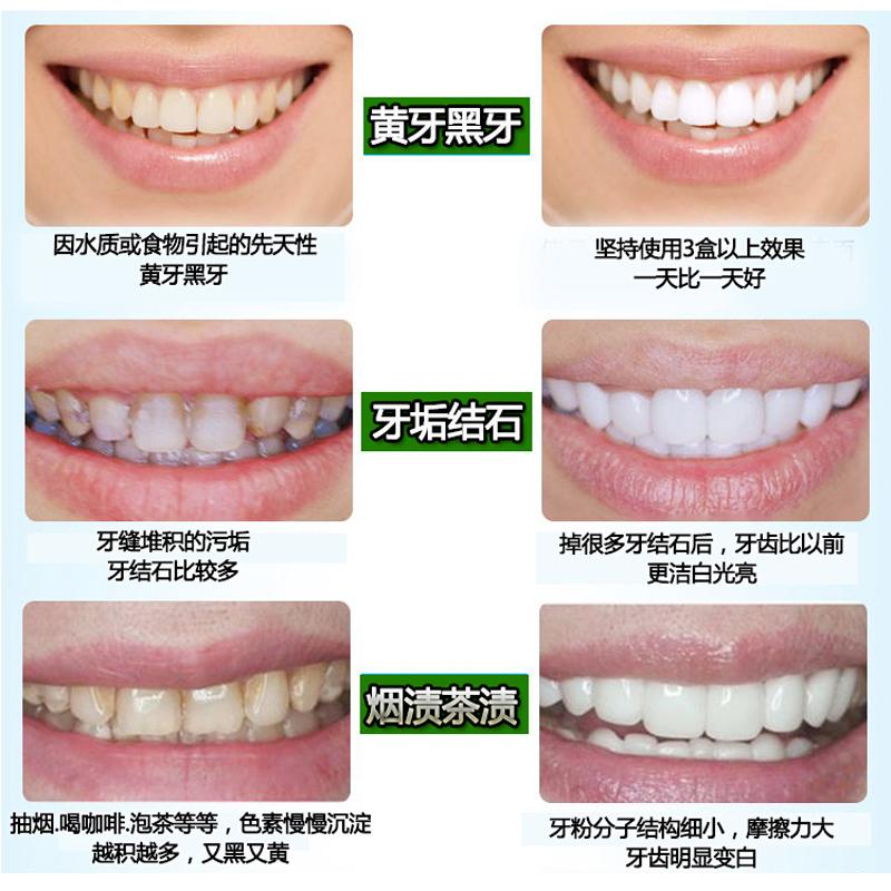 牙贝健牙齿美白牙黄去烟渍牙渍牙垢黄牙结石神器洗牙粉牙膏除口臭