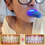 冷光美牙仪除黄牙黑牙烟渍牙贴白牙素