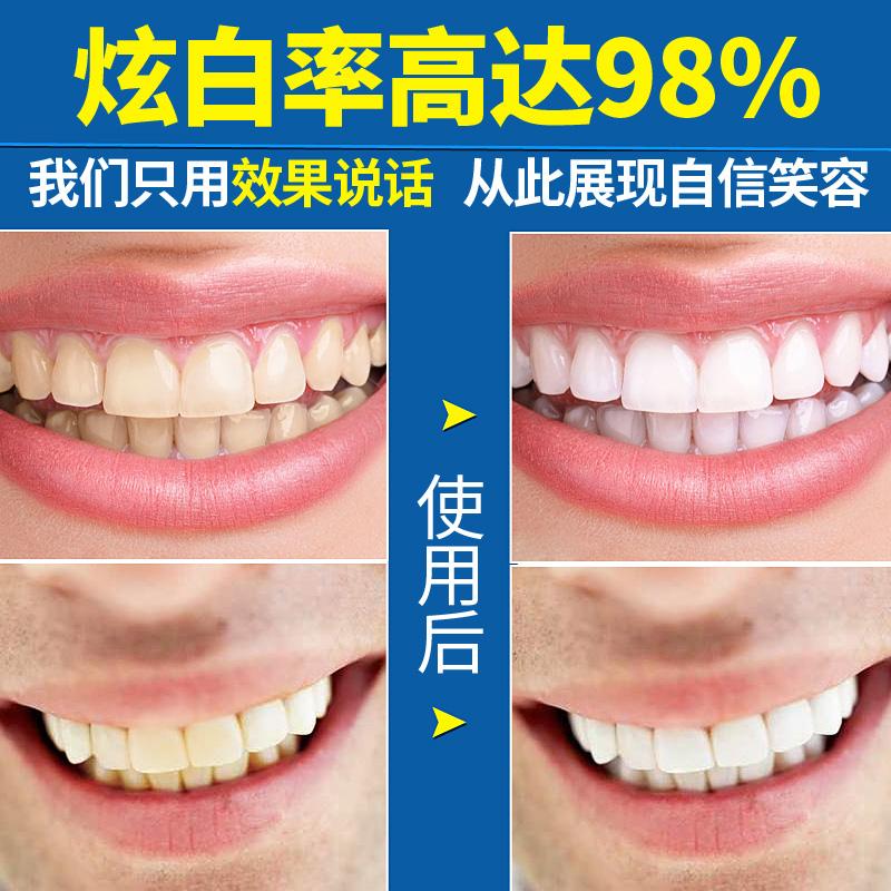 美牙贴速效美白去黄牙美白牙齿中华魔丽迅白美白笔魔力迅白