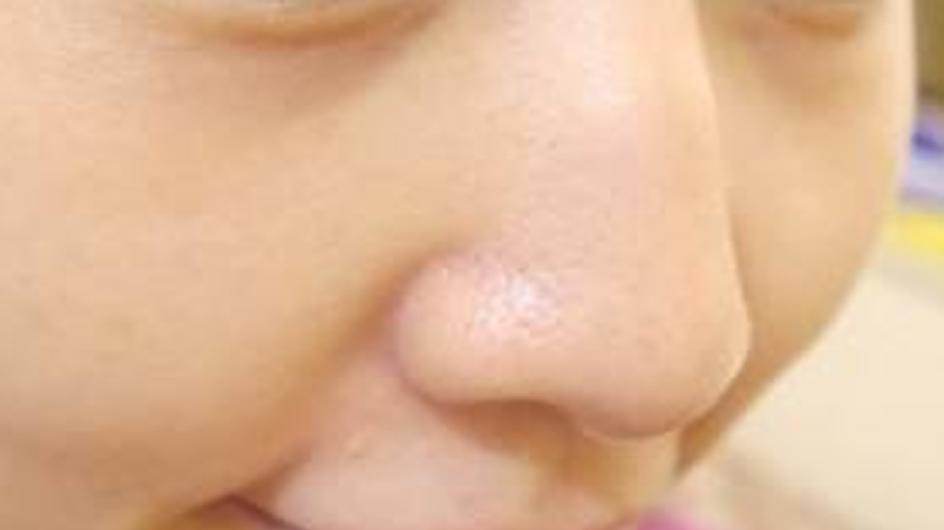 4个原因告诉你:毛孔为什么粗大