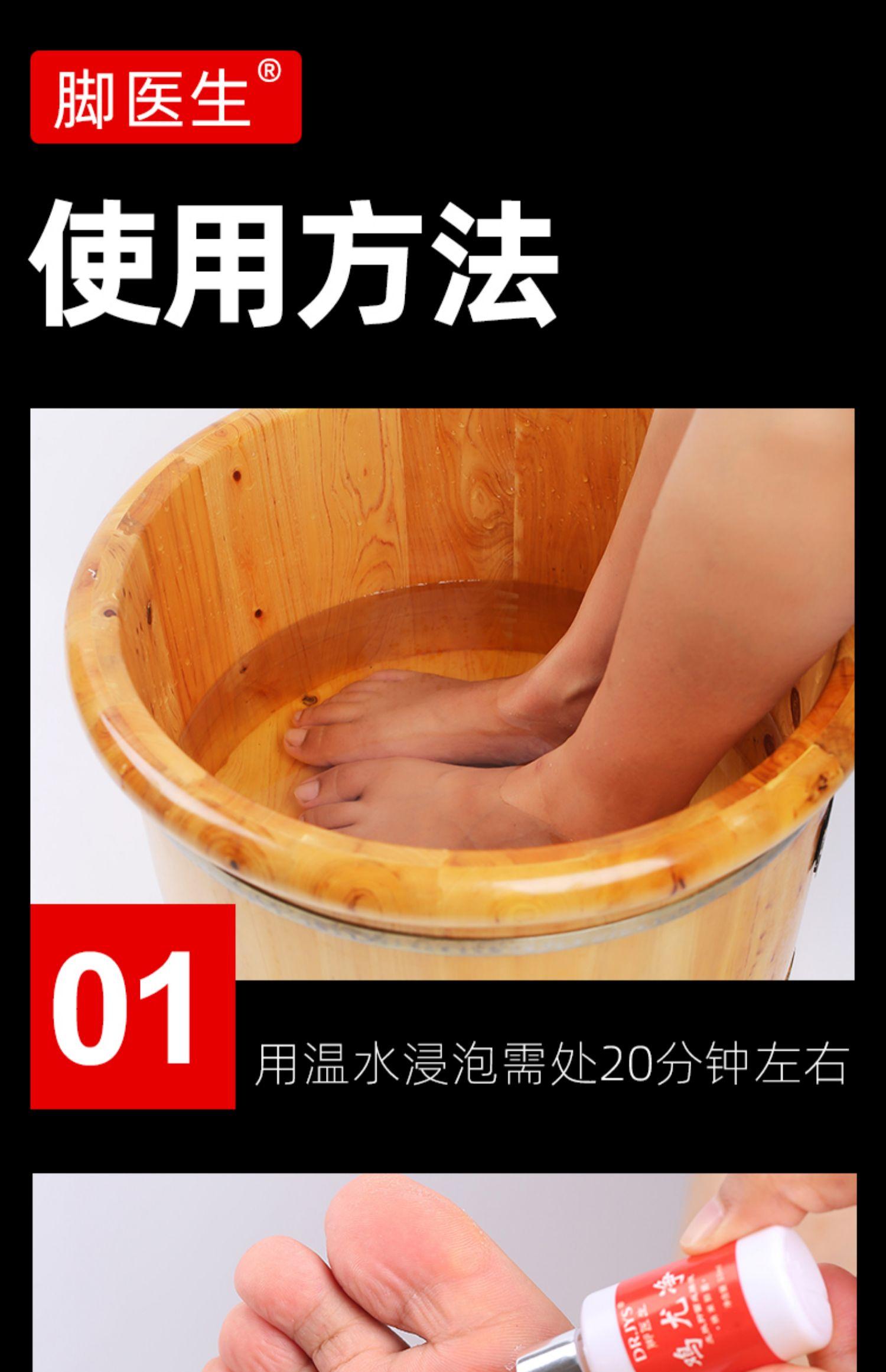 【脚医生】手脚抗菌剂净鸡眼老茧肉刺