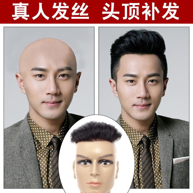 假发男真人发丝头顶男士发块前额补发片隐形无痕秃顶补发生物头皮