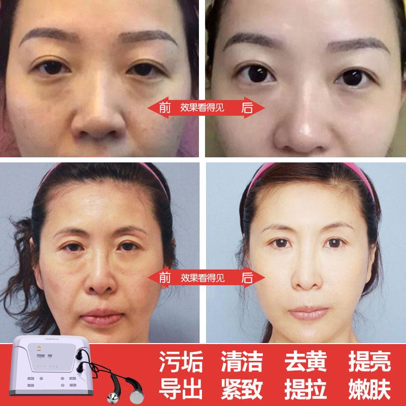 金稻超声波美容仪导出导入仪美容院面部排毒美容仪器家用提拉脸部