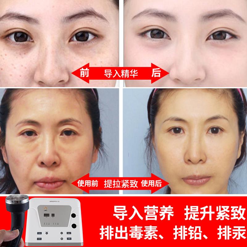金稻超声波美容仪脸部排毒美容院仪器家用面部离子导入仪电子导出