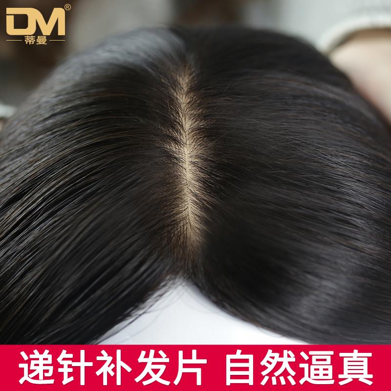 蒂曼假发片头顶补发片隐形无痕真发递针遮白发顶补发块假发女长发