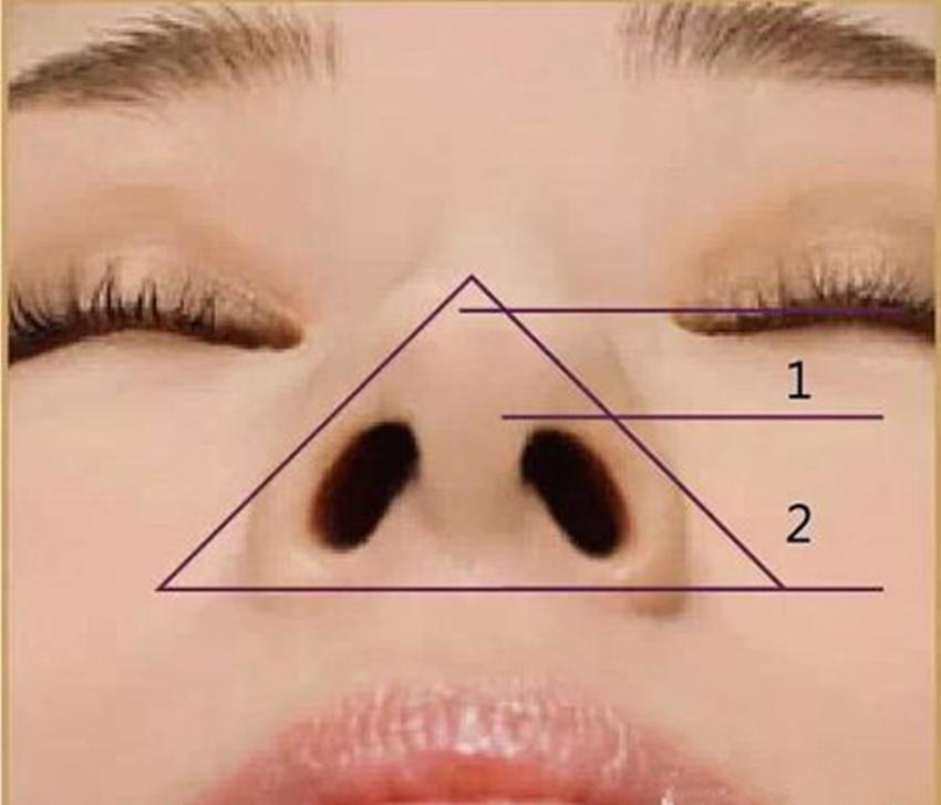 鼻子的鼻怎么写_用瑜伽洗鼻壶鼻子很酸,另一个鼻子没有水出来_鼻子是草莓鼻又红怎么办?