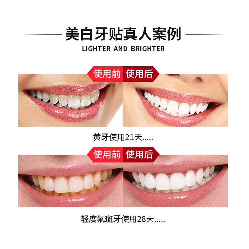 牙贴女洁白牙齿去黄牙去牙垢烟茶渍美白牙齿抖音网红同款牙贴10对