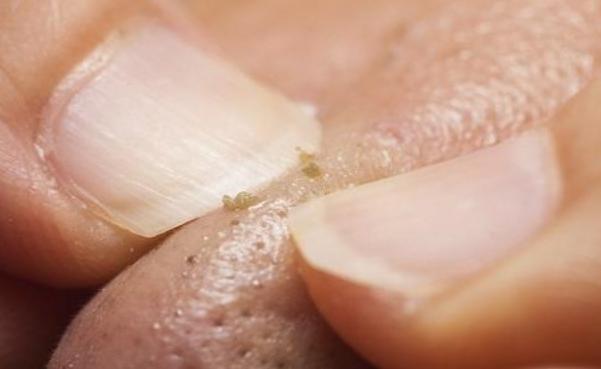 加盟抿嘴时下巴上面的白色小颗粒到底是什么