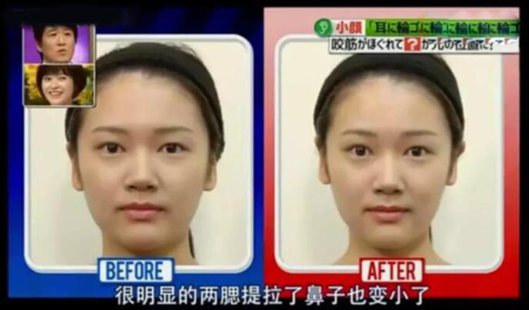 还在嫌自己脸大?4款瘦脸黑科技拯救你!