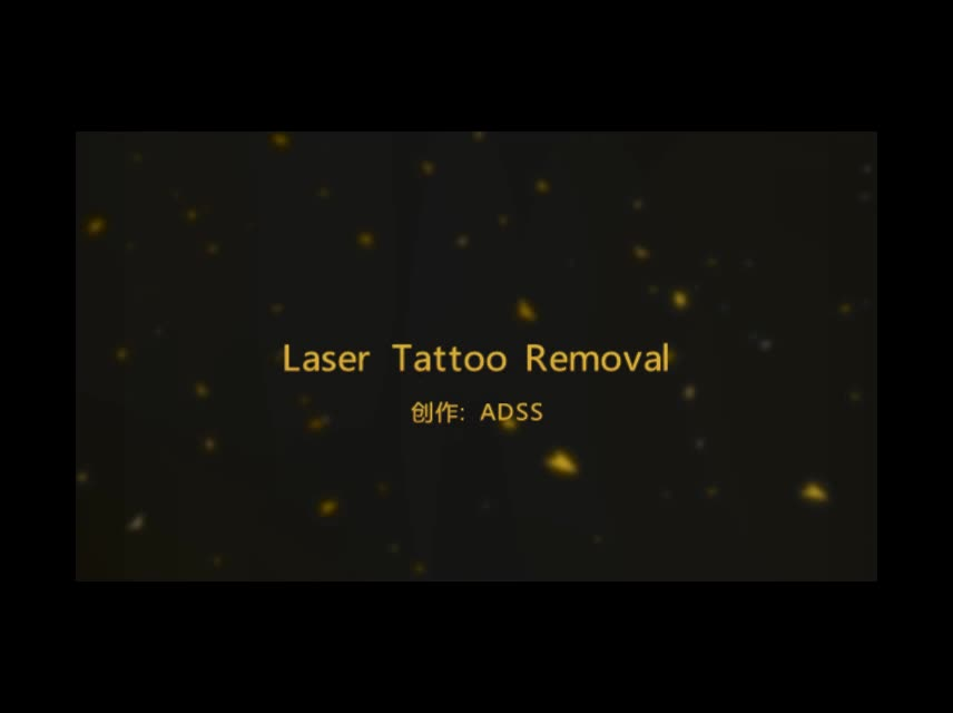 Skin treatment skin rejuvenation Picosecond laser for refractory pigmented lesion