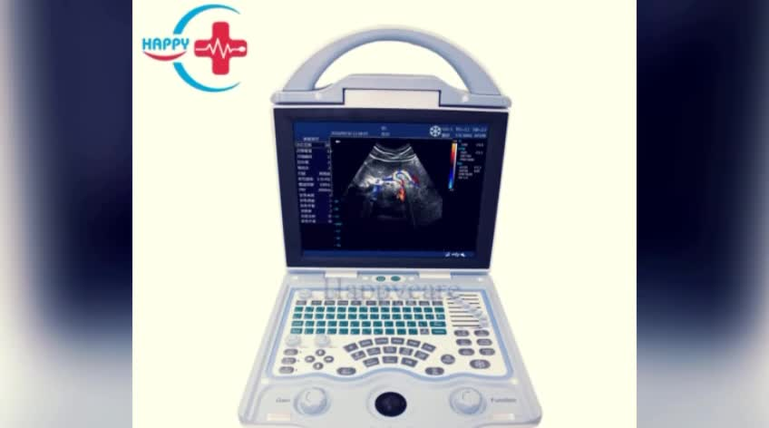 Full Digital Portable Color Doppler Ultrasound equipment with Competitive price