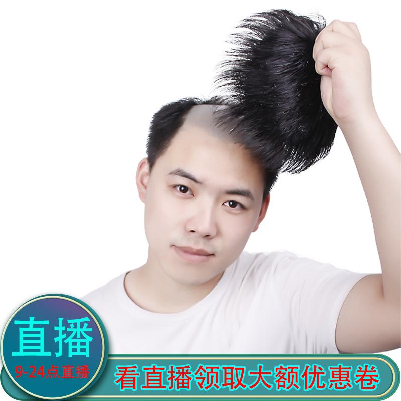 男士补发片假发套头顶补发前额秃顶补发垫接发翻盖假发真发男发块