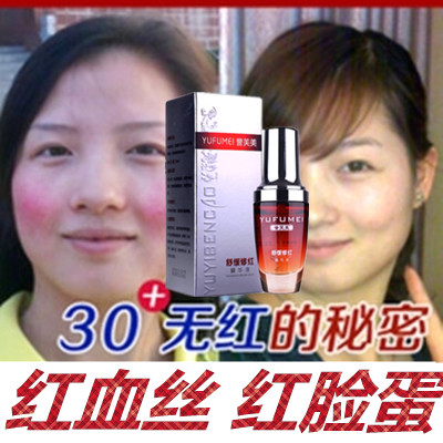 Plant original liquid facial sensitive skin repairing, removing red blood, thin cuticle, desensitizing skin care products