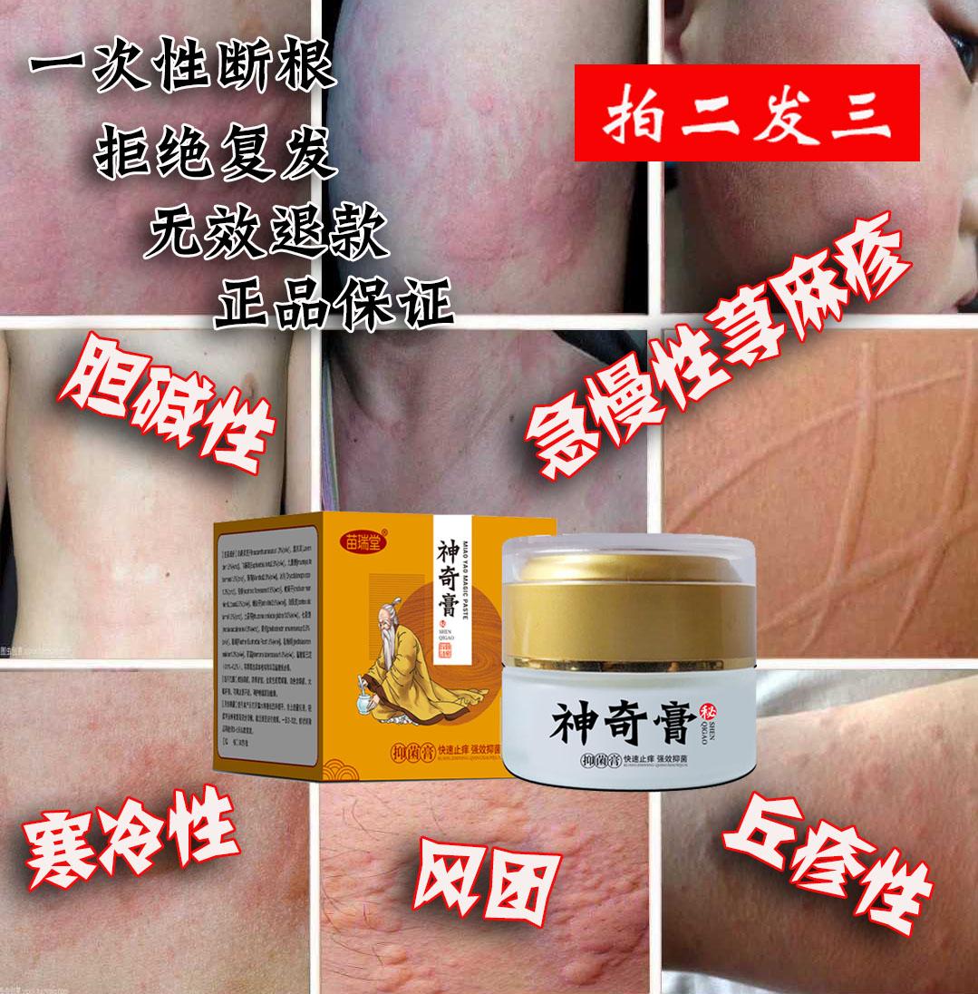 专用治療急慢性寻荨麻疹外用药断根风团过敏皮肤瘙痒止痒中药膏