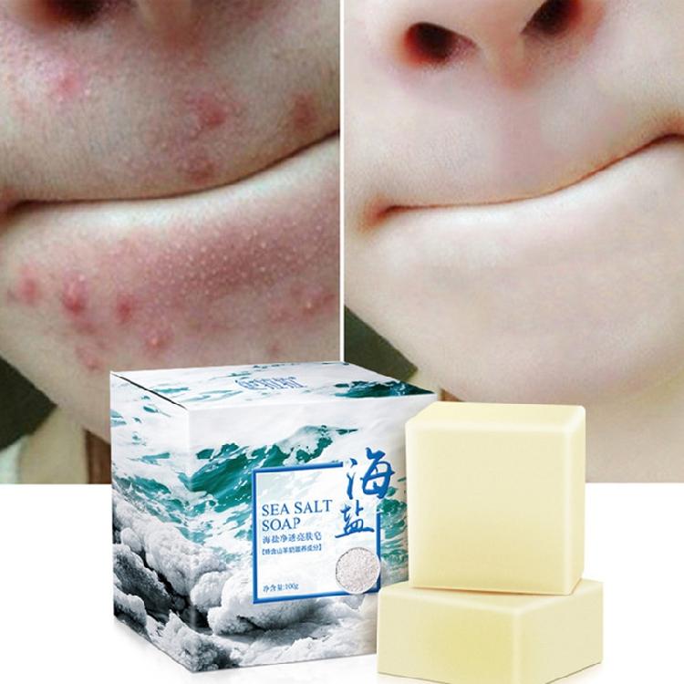 天然除螨皂男女正品硫磺皂全身背部杀菌海盐皂洗脸洁面沐浴皂券后19.90元
