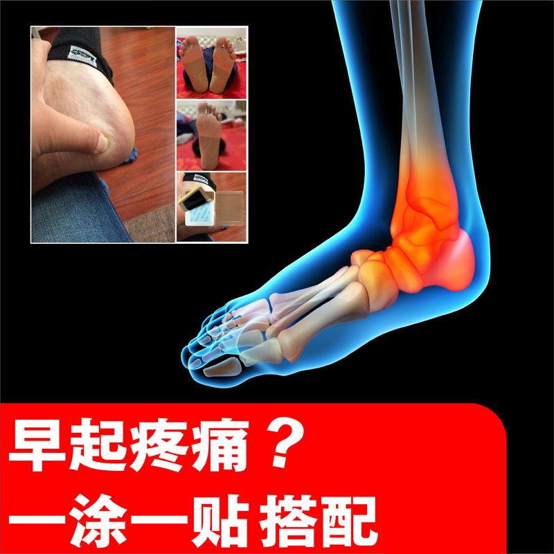 足跟痛贴脚后跟疼痛安康膏宁消专用贴膏脚跟疼跟腱炎日本足根脚底
