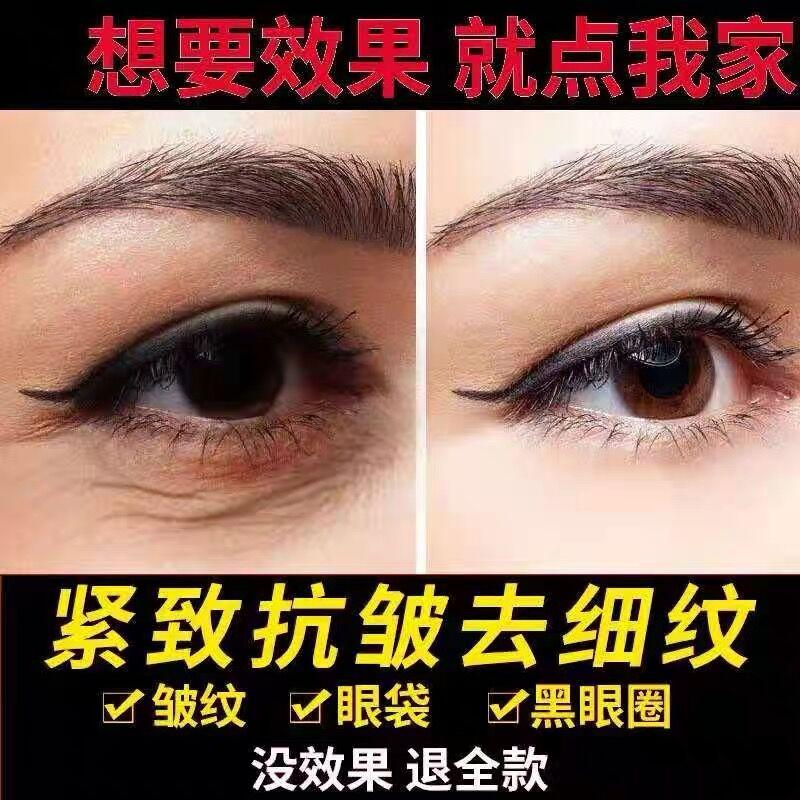 【去眼袋】眼霜祛浮肿提拉紧致淡化黑眼圈细纹补水保湿神器正品