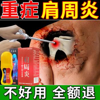 肩周炎专用贴膏活血化瘀肩膀颈椎关节疼痛肩周劳损正品冷敷膏药贴