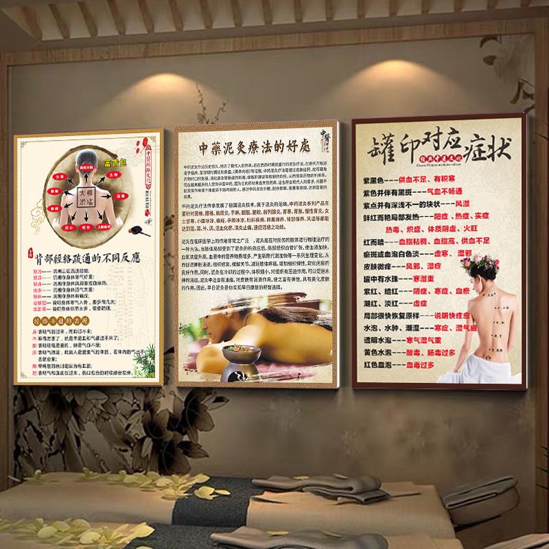 中医理疗馆养生馆装饰画刮痧拔罐广告图艾灸广告宣传画美容院养生 Изображение 1