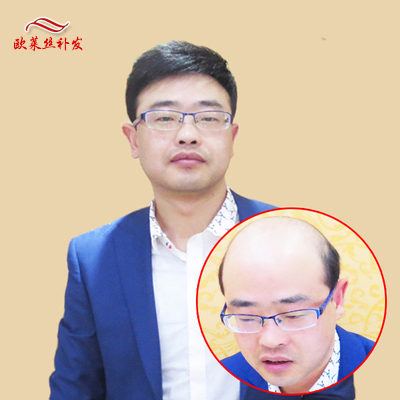 Li Ping mends the whole wig, weaves a piece of real mans hair, no trace, top of head, olaisi wig, short mending piece