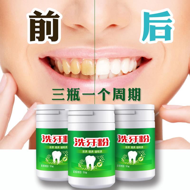 买2送1 时通洗牙粉 洁牙粉牙齿美白神器速效去除黄牙烟牙不伤牙龈