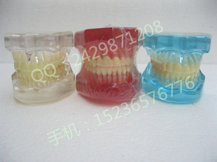 Orthodontic materials Dental materials Dental equipment standard color transparent model