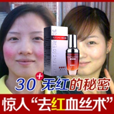 Remove red blood cells, repair products, anti sensitive skin care products, improve cuticle thin essence, authentic products