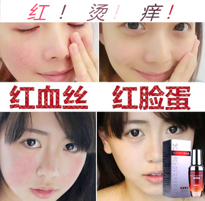Remove red blood, repair horny plateau red, remove apple face, skin hormone, face sensitive skin essence.