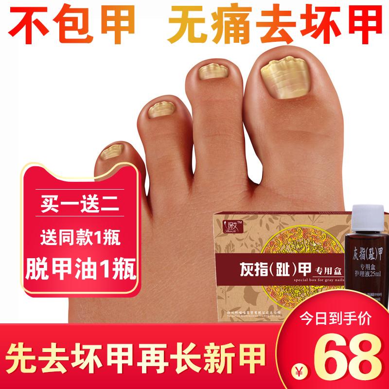 灰指甲专用药脱甲膏灰甲净去除增厚软甲治療冰醋酸抑菌液日本藥膏