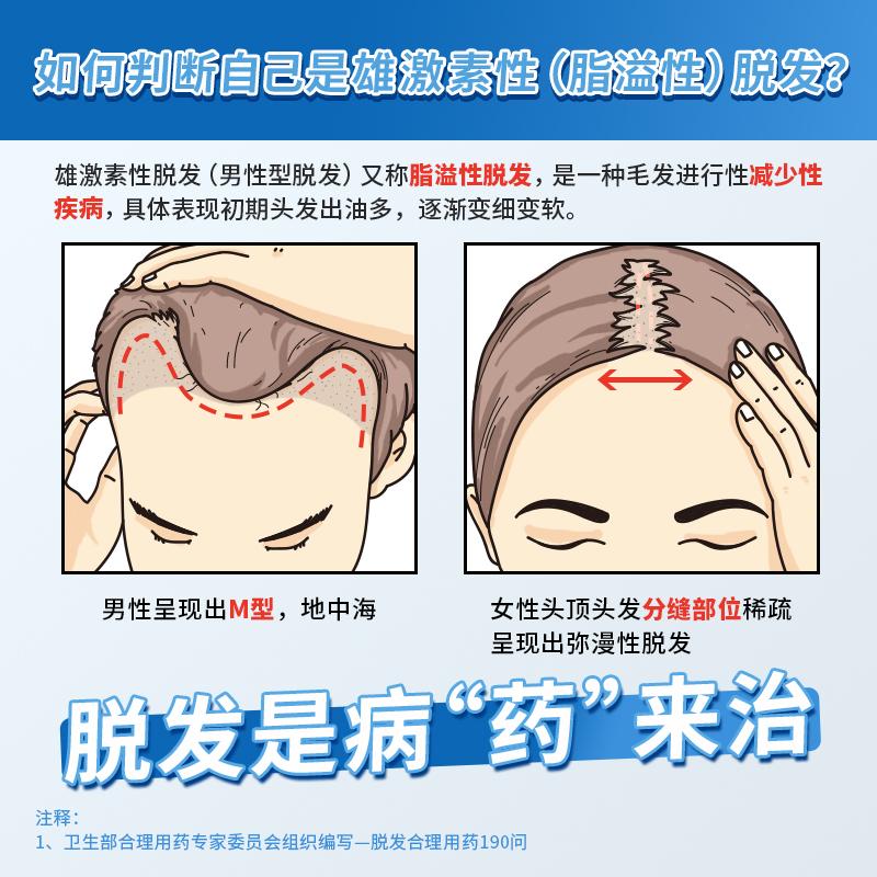 Mediminoxidil tincture prevent hair loss, increase hair, dense hair, less hair growth, line growth liquid liniment