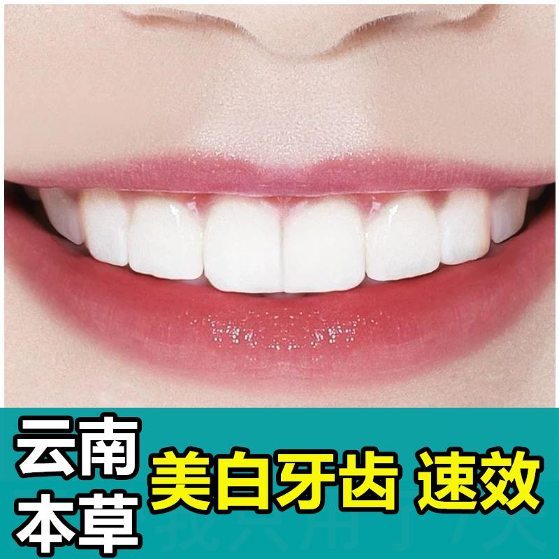 正品神器洗牙白去黄黑污垢去除牙粉质量怎么样