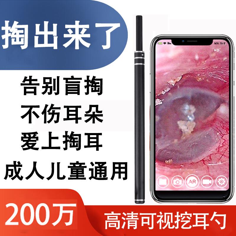 吸耳内镜赵医生同款可视挖耳勺神器高清掏耳勺内视镜采耳仪器耳镜