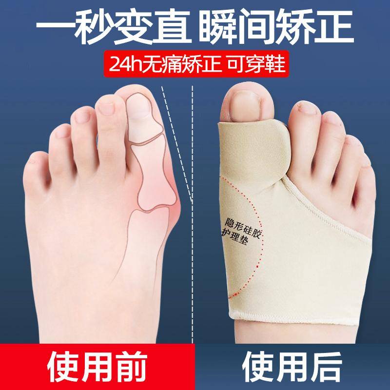 大母脚趾拇外翻矫正器男女士纠正拇指告别大脚骨女可以穿鞋分趾器