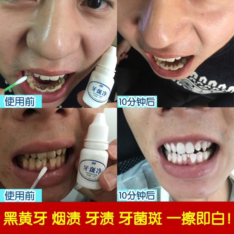 Зуб в наличии чистый зуб беление скорость эффект идти желтый зуб дым зуб бактерии в наличии зуб грязь черный рассол мыть зуб порошок чистый зуб артефакт белый зуб вегетарианец