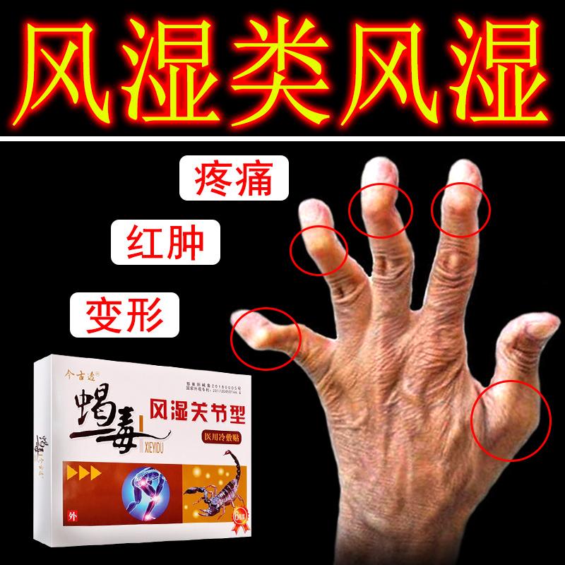 蝎毒风湿贴去风湿类风湿关节痛手指变形理疗克贴膏星祛风除湿膏药