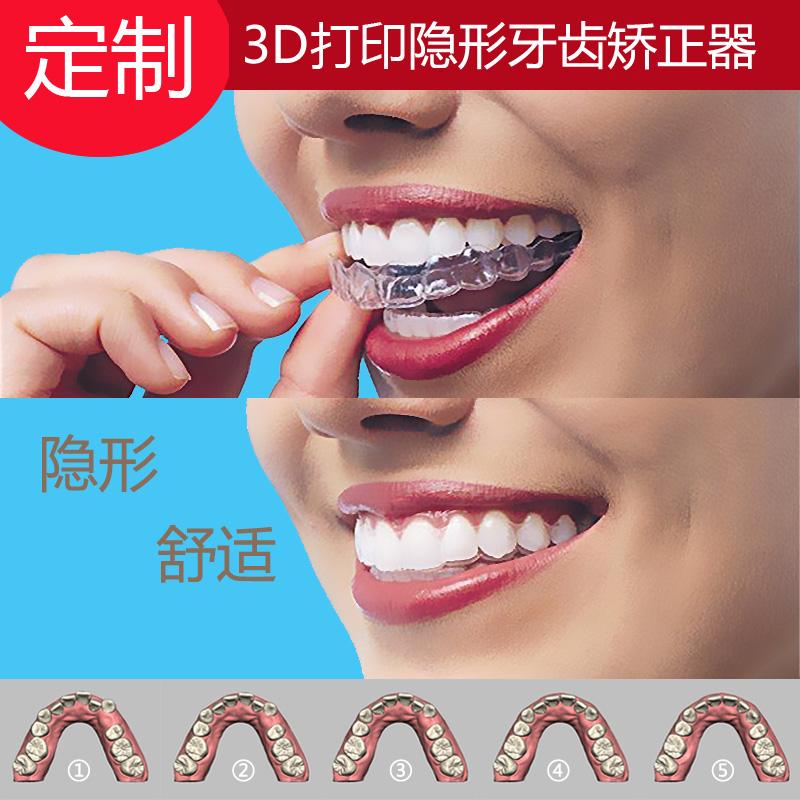 星美隐形牙齿矫正器 透明牙套 牙缝龅牙成人儿童 时代天使 隐适美