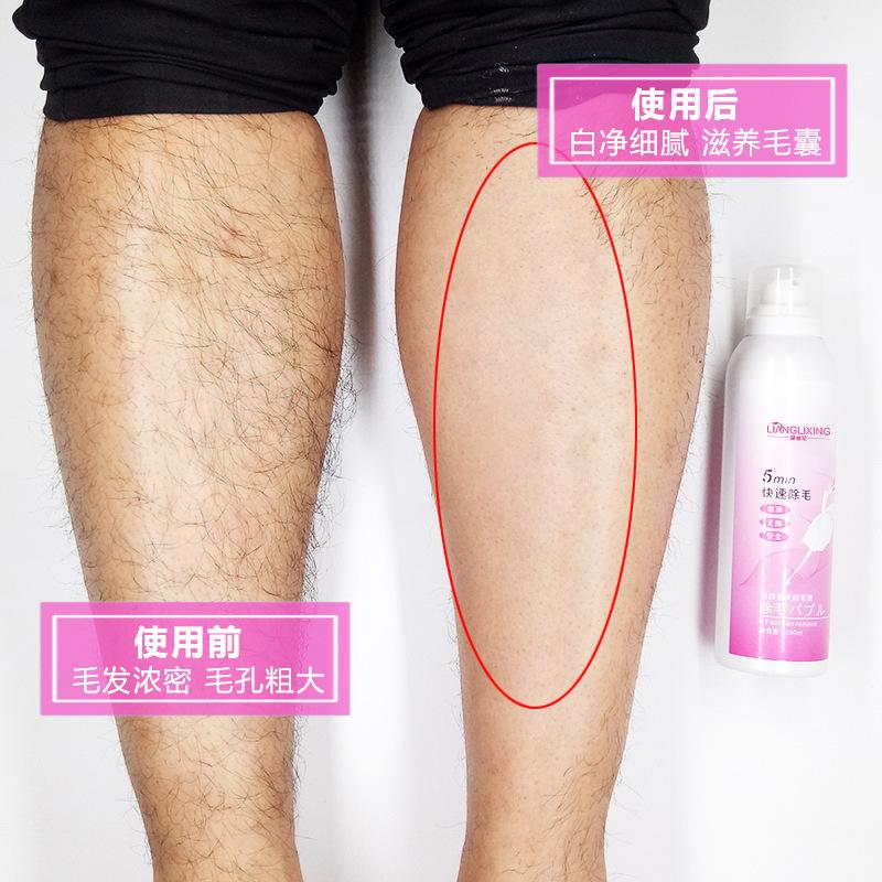 11月29日最新优惠脱毛喷雾神器脱毛慕斯男女通用全身净肤脱毛膏
