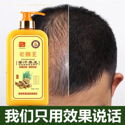 生姜洗发水防脱生发增发密发高额头发际线生发液头发掉发怎么办