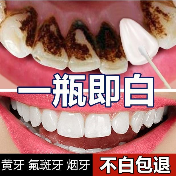 牙�X美白速效去除�S牙���n牙垢氟斑牙洗牙液洗牙粉小�K打牙�N神器