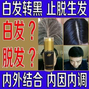 防脱生发密发男女头发增长液白发变黑发茶白发变黑发转黑