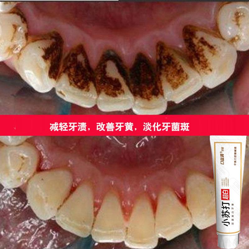 口益清超白牙膏美白去黄牙白人更美 牙白不求人 唇红齿白黄牙亮白