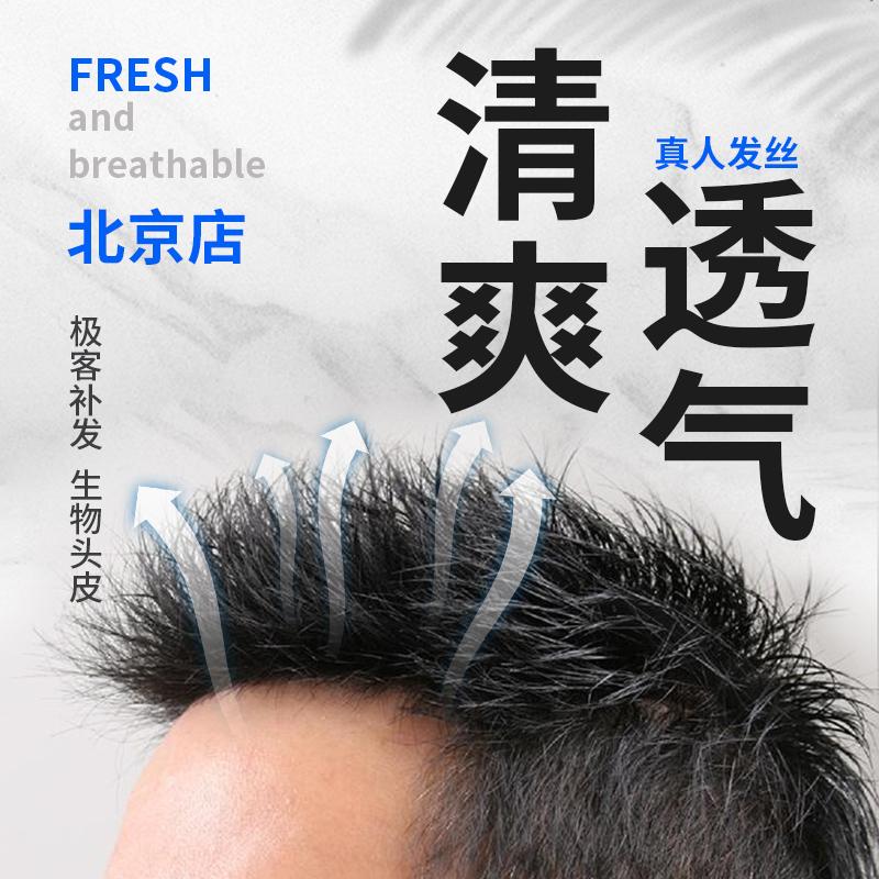 Beijing Wig Mens short hair Korean version handsome traceless hair patch mens baldness wig piece biological scalp hairline