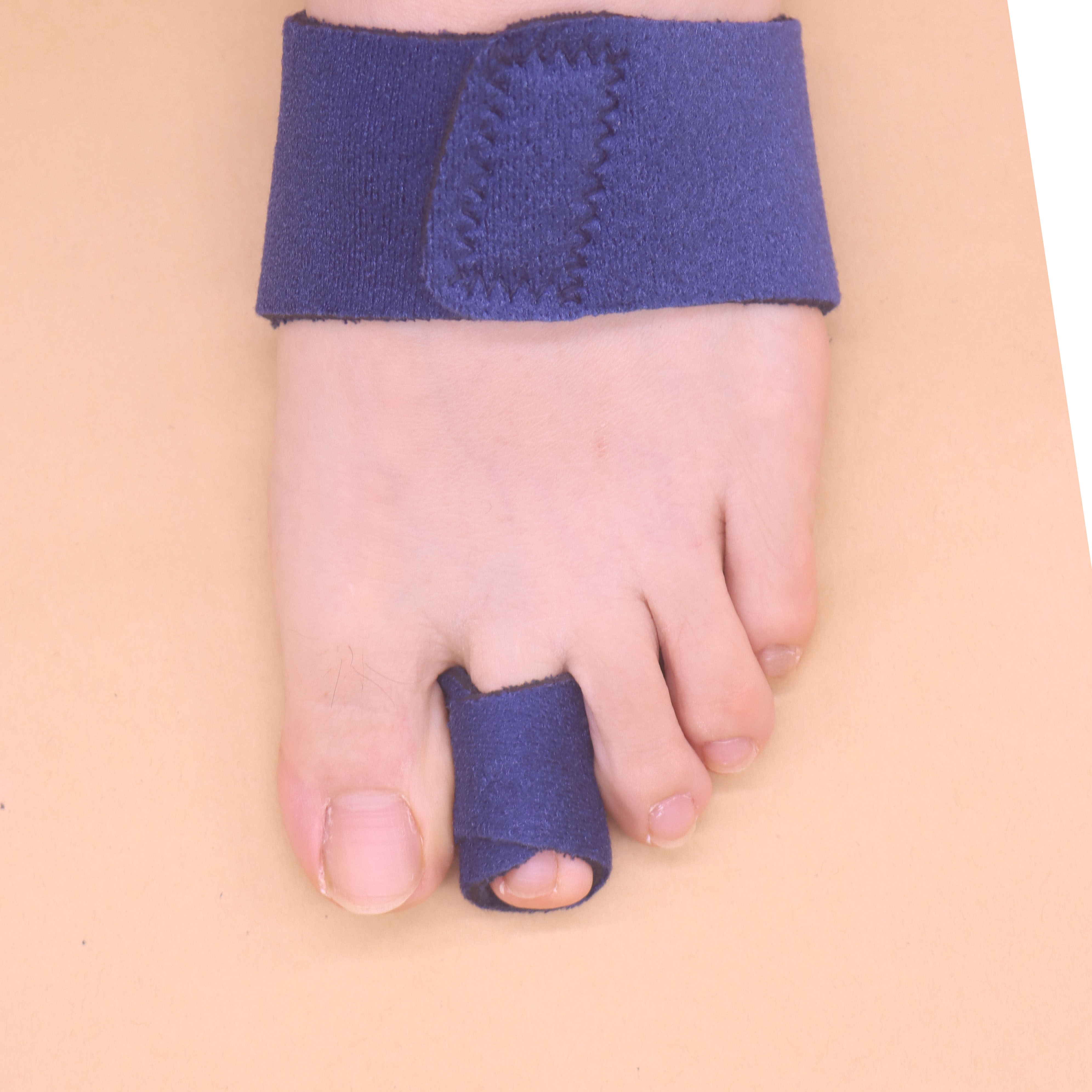 Forefinger upwarping fracture fixation two toe bending appliance drop toe hammer overlap arch toe claw toe