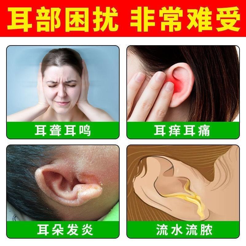 耳鸣听力敷贴脚底调理耳穴耳冷克星下降贴贴贴缓解耳朵贴耳耳鸣
